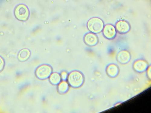 Yeast in the microscope